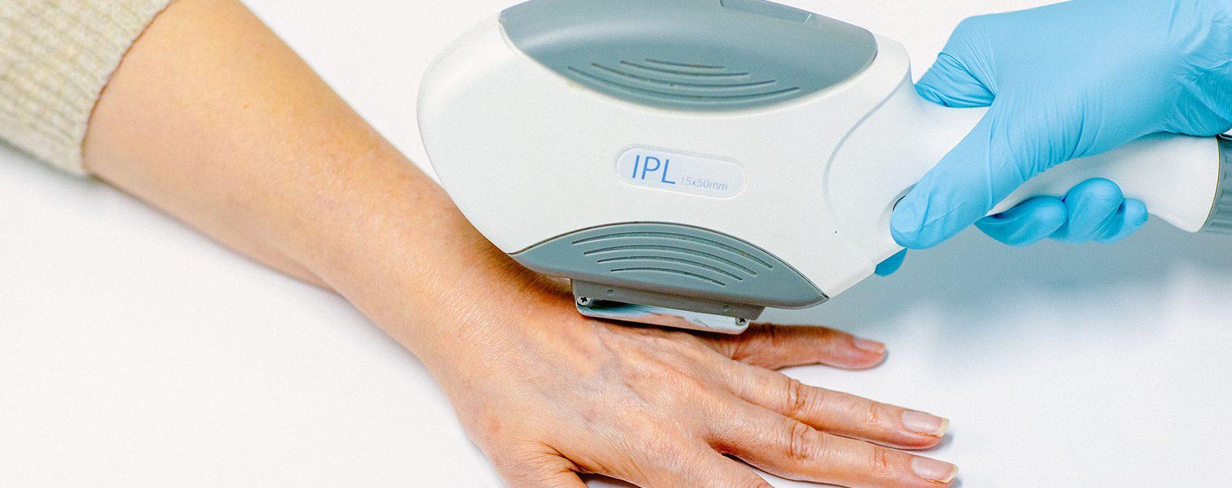 lasertherapie huidveroudering