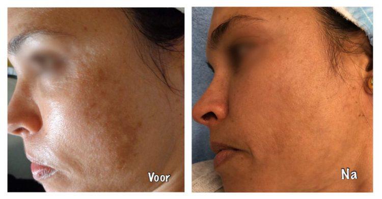 behandeling hyperpigmentatie